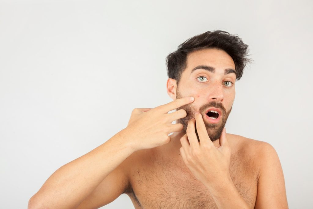 man with adult acne