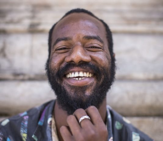 man with beard dandruff